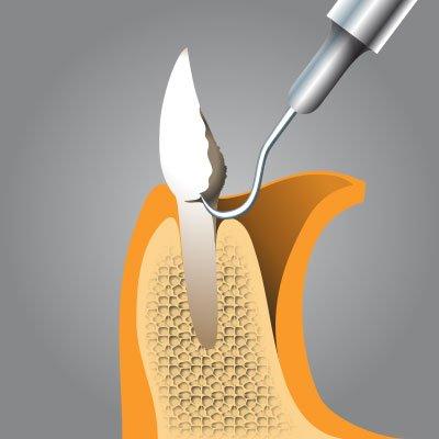 Implantatzentrum Herne