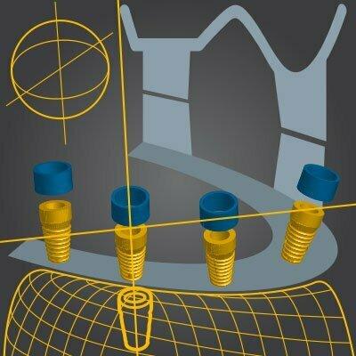 3D Augmentation/Schalentechnik